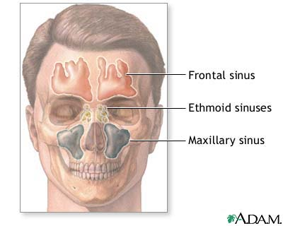 Headache-Sinus-ADAM